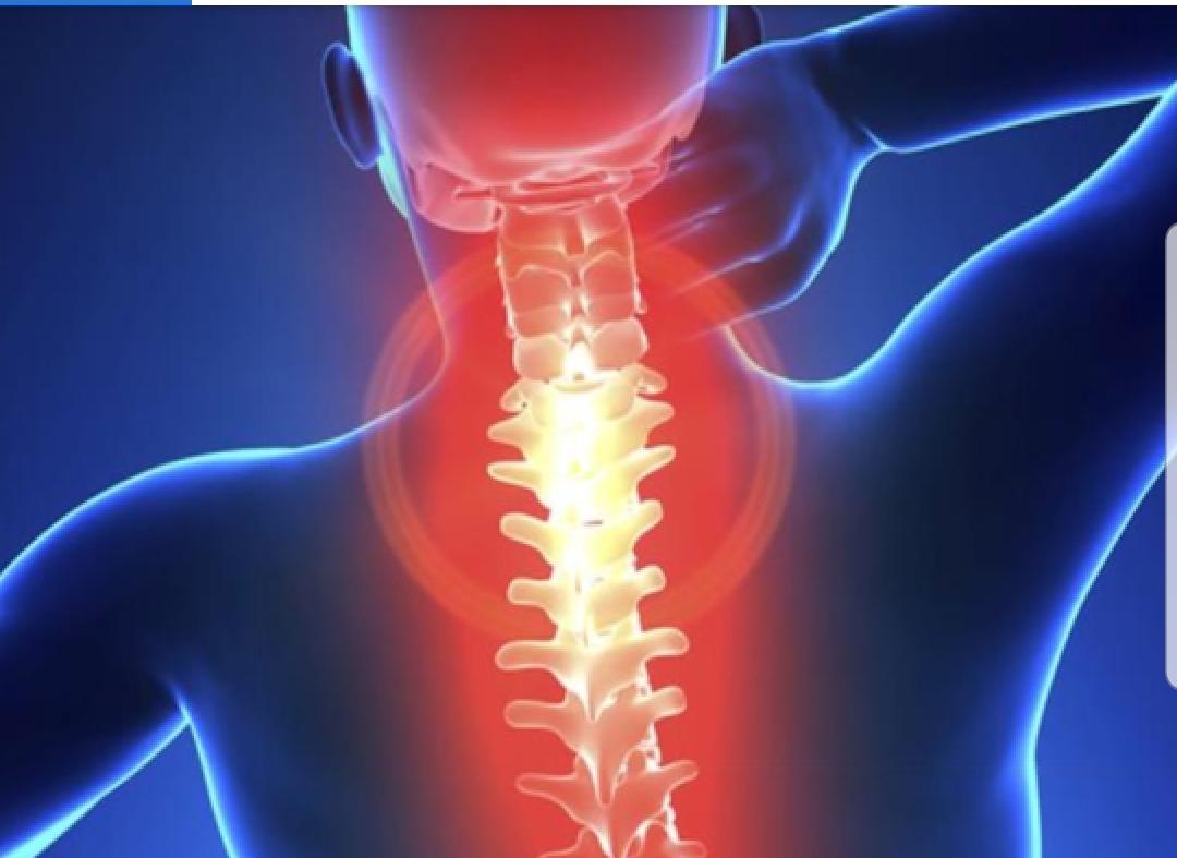 Spondiloza cervicala este cauza ametelilor si a furnicaturilor in brate